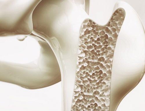 Prevenzione all'osteoporosi: ruolo della vitamina  D + vitamina K2