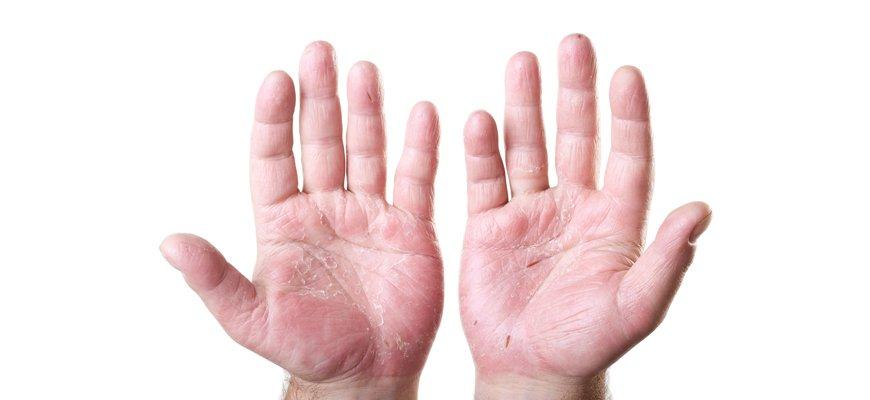 Allergia al nickel nelle mani